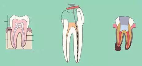 根管治疗后戴个牙冠, 是医生忽悠你吗?