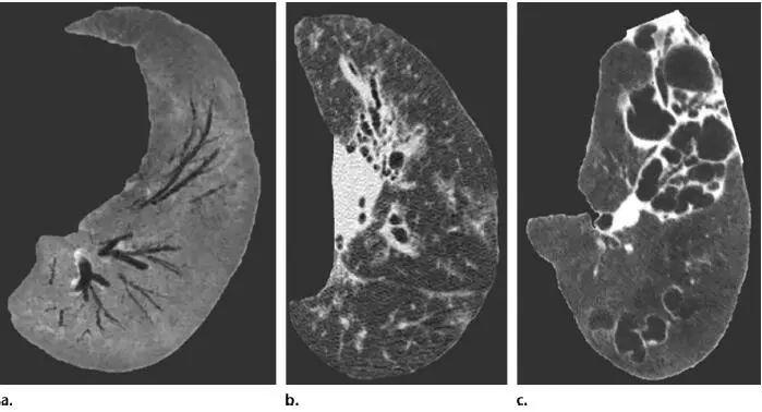 支气管扩张的影像特征有哪些?