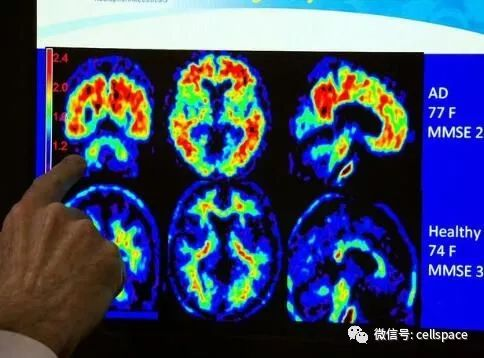 Science:揭开几十年谜题!科学家终破解阿尔兹海默病大脑斑块奥秘!