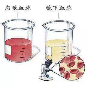 血尿是否一定为肾病?