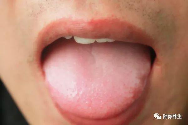 为什么生病时要看舌头 5种变化 可能是疾病信号
