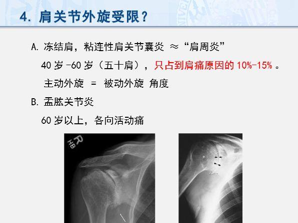 肩痛的诊断流程,太实用了!