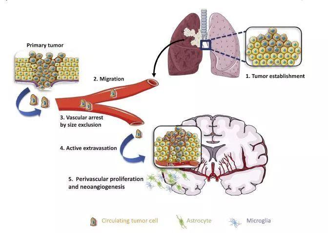 V辣有货 | 肺癌脑转移的免疫治疗进展