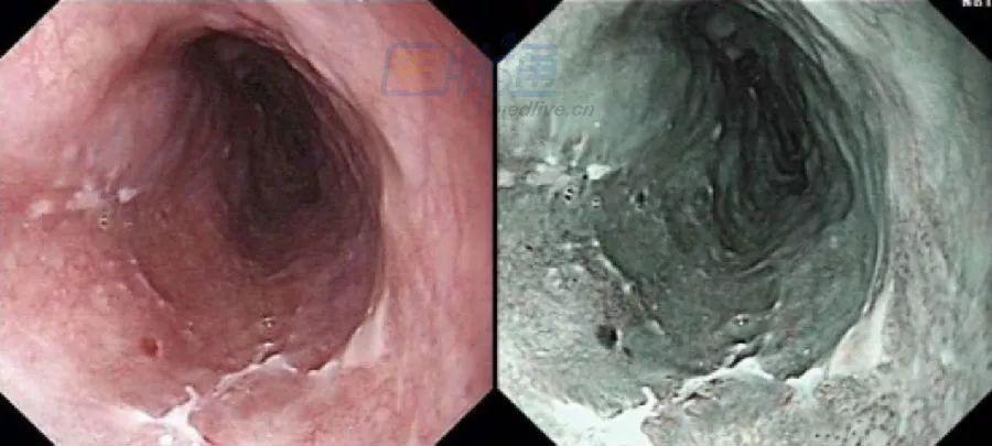 食管病变图谱(白光与NBI)|温故知新